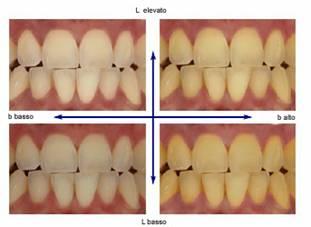 Colore dei denti scala vita come si quantifica il colore - Scale di colore ...